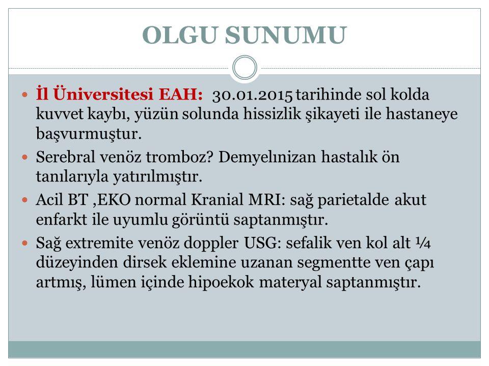 OLGU SUNUMU İl Üniversitesi EAH: 30.01.2015 tarihinde sol kolda kuvvet kaybı, yüzün solunda hissizlik şikayeti ile hastaneye başvurmuştur.