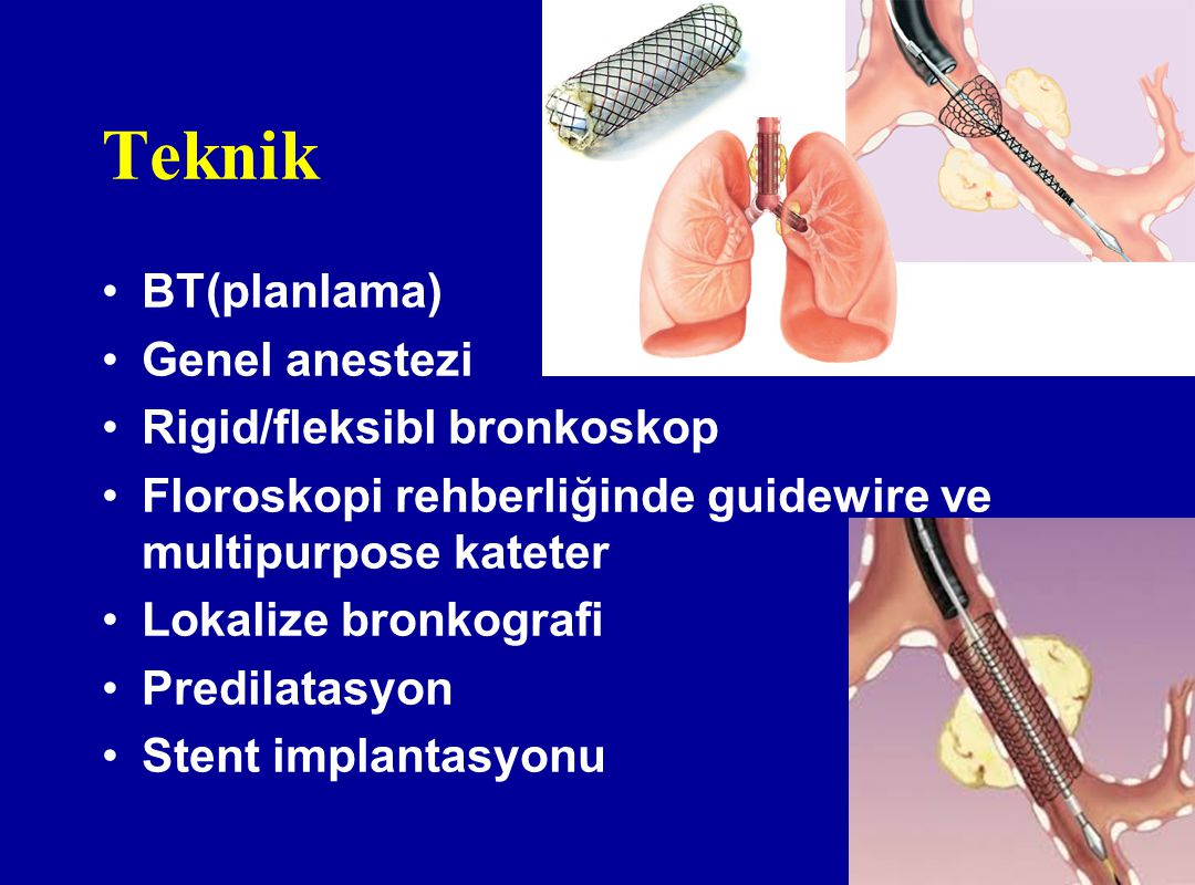 Teknik BT(planlama) Genel anestezi Rigid/fleksibl bronkoskop