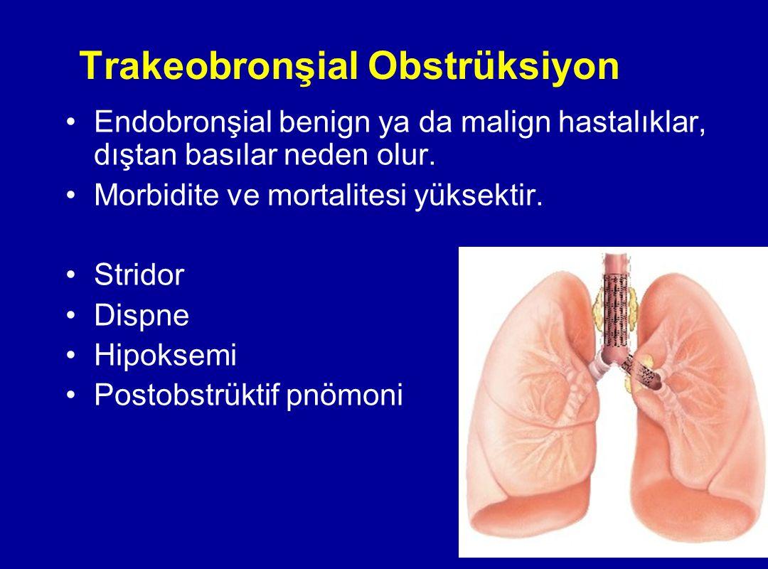 Trakeobronşial Obstrüksiyon