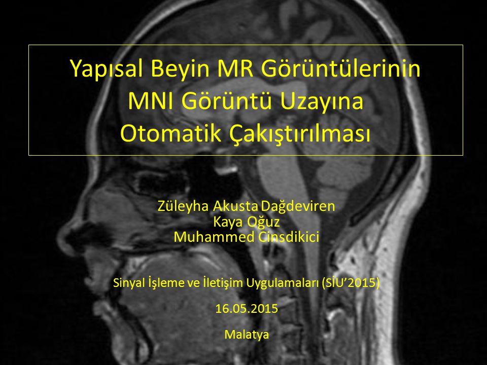 Yapısal Beyin MR Görüntülerinin MNI Görüntü Uzayına Otomatik Çakıştırılması