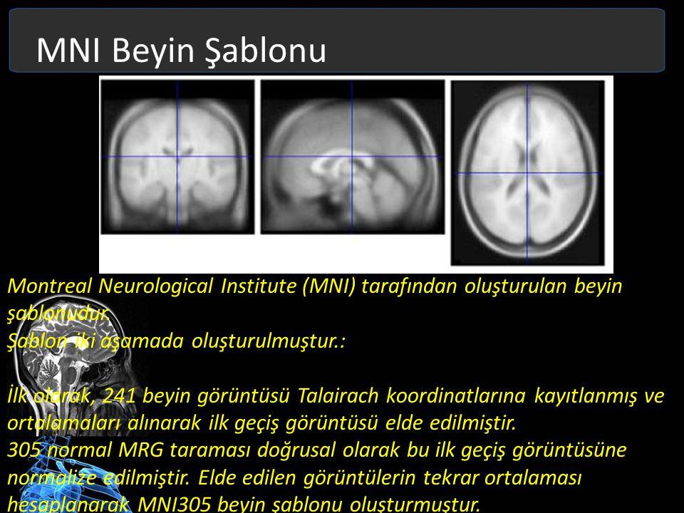 MNI Beyin Şablonu Montreal Neurological Institute (MNI) tarafından oluşturulan beyin şablonudur. Şablon iki aşamada oluşturulmuştur.: