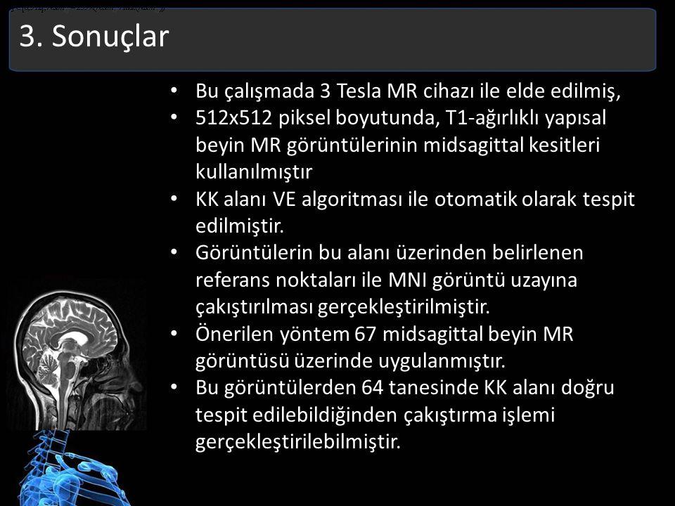 3. Sonuçlar Bu çalışmada 3 Tesla MR cihazı ile elde edilmiş,
