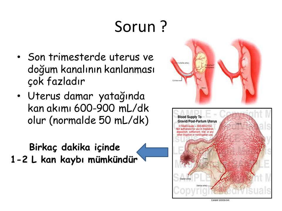 Sorun Son trimesterde uterus ve doğum kanalının kanlanması çok fazladır. Uterus damar yatağında kan akımı 600-900 mL/dk olur (normalde 50 mL/dk)