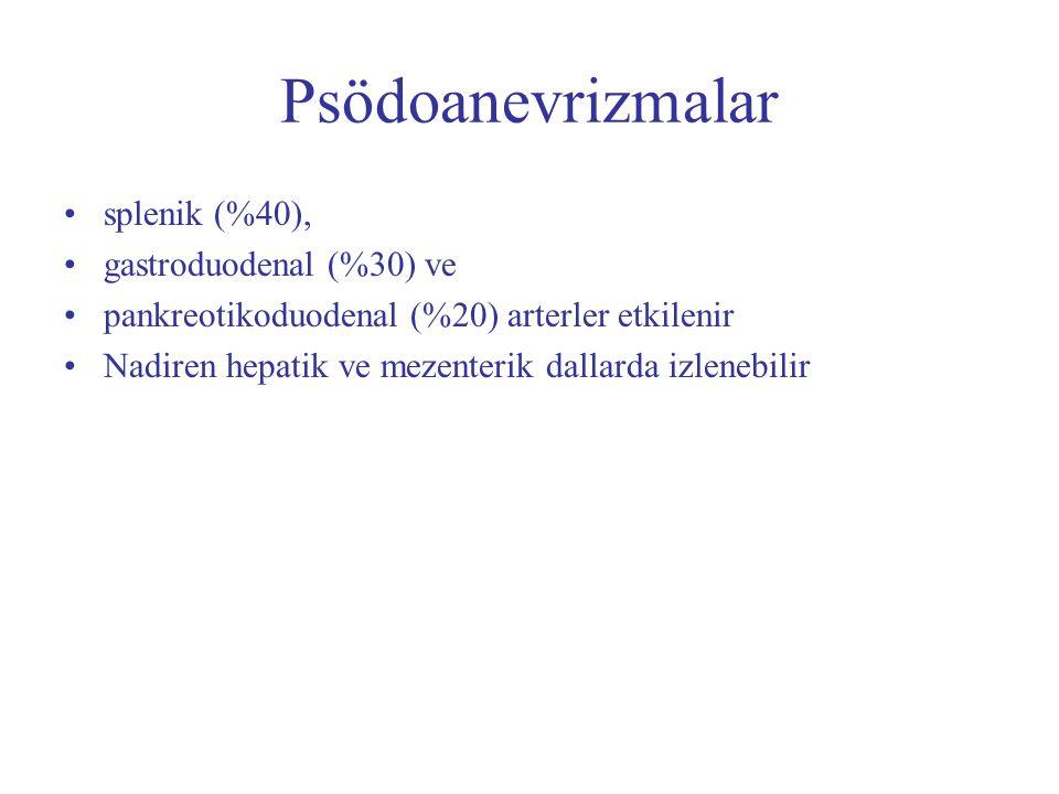 Psödoanevrizmalar splenik (%40), gastroduodenal (%30) ve