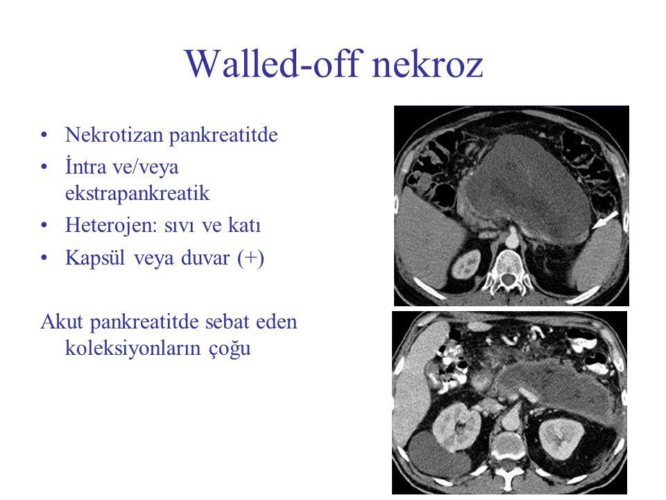 Walled-off nekroz Nekrotizan pankreatitde
