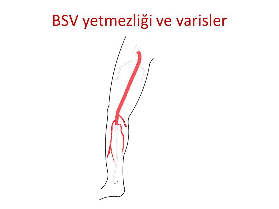 BSV yetmezliği ve varisler
