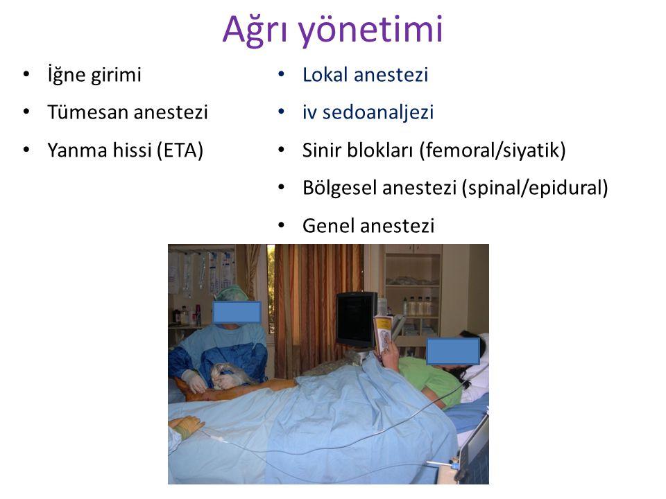 Ağrı yönetimi İğne girimi Tümesan anestezi Yanma hissi (ETA)