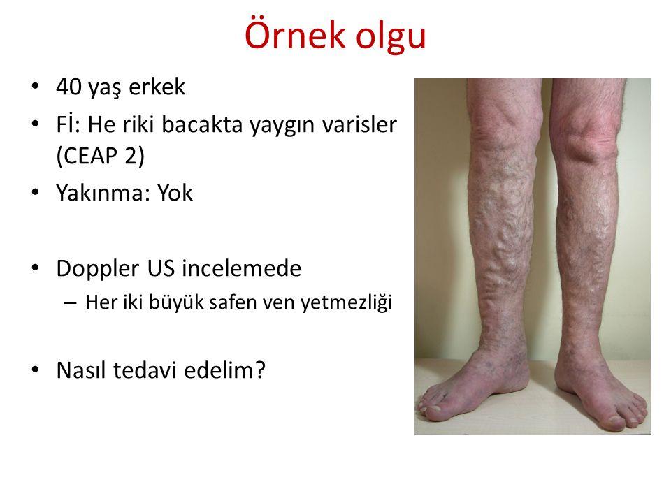 Örnek olgu 40 yaş erkek Fİ: He riki bacakta yaygın varisler (CEAP 2)