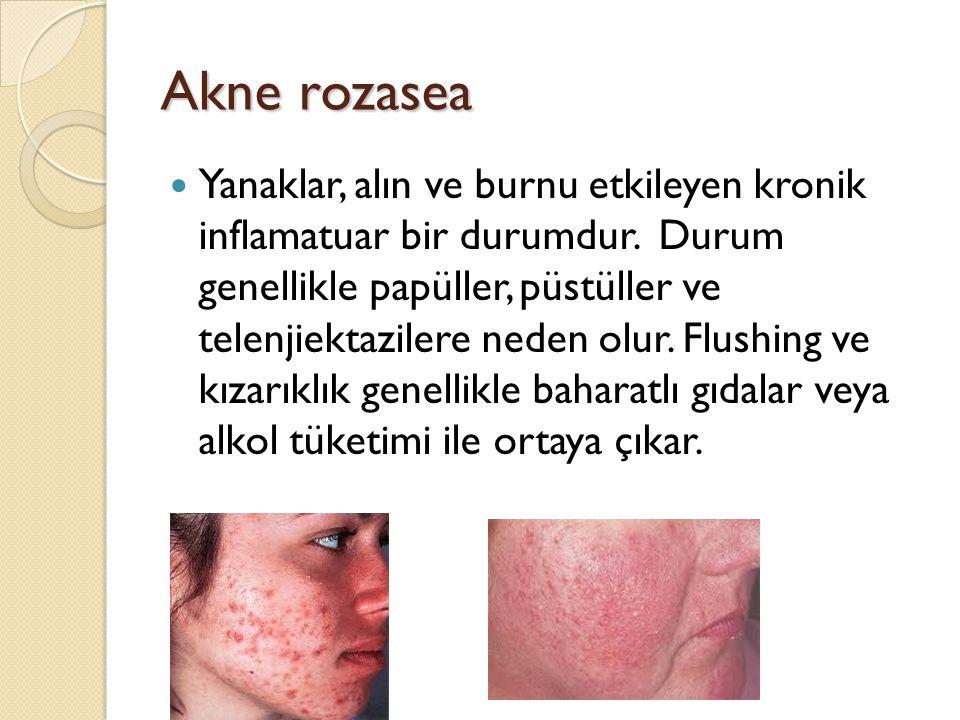 Akne rozasea