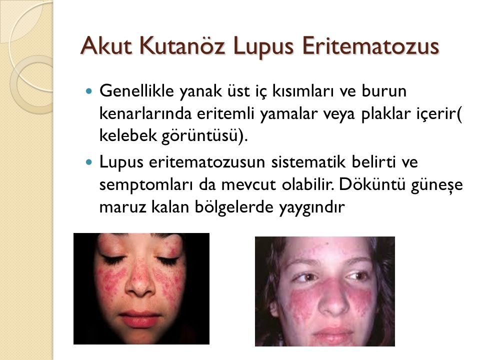 Akut Kutanöz Lupus Eritematozus