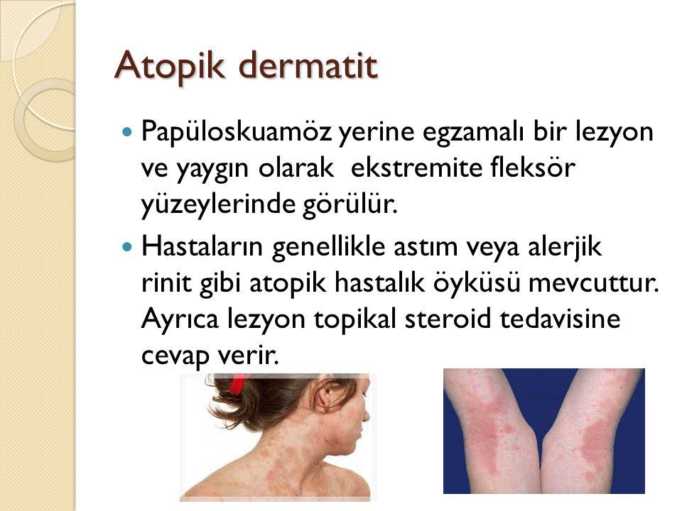 Atopik dermatit Papüloskuamöz yerine egzamalı bir lezyon ve yaygın olarak ekstremite fleksör yüzeylerinde görülür.