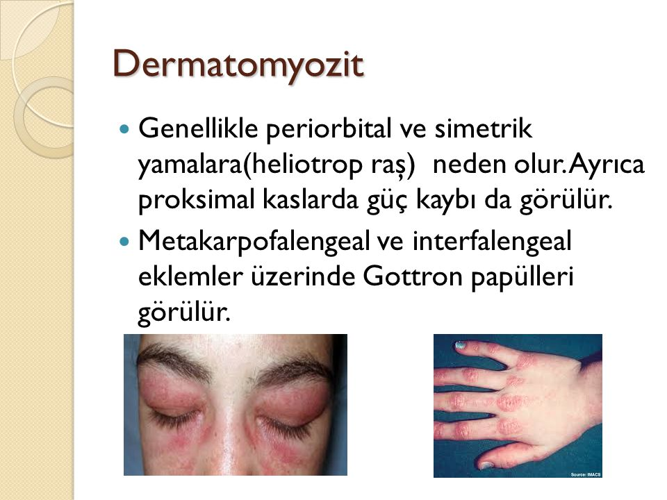 Dermatomyozit Genellikle periorbital ve simetrik yamalara(heliotrop raş) neden olur. Ayrıca proksimal kaslarda güç kaybı da görülür.