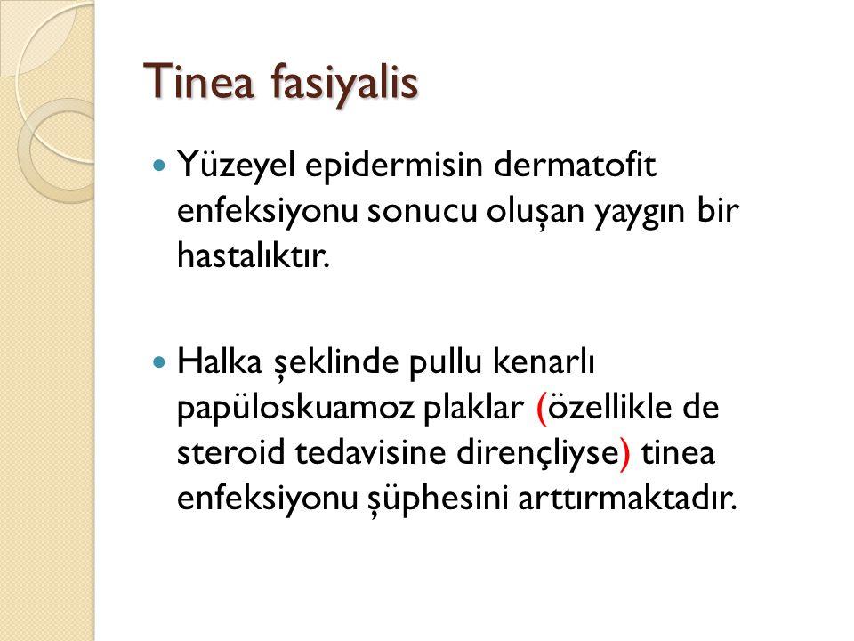 Tinea fasiyalis Yüzeyel epidermisin dermatofit enfeksiyonu sonucu oluşan yaygın bir hastalıktır.