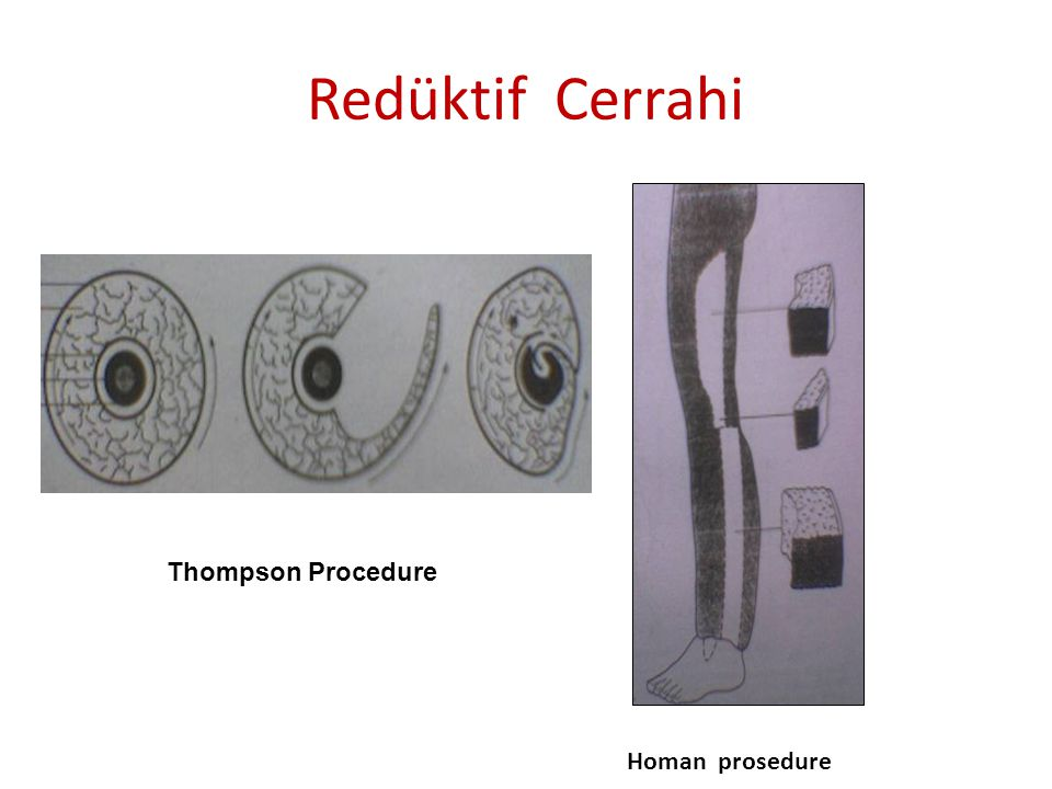 Redüktif Cerrahi Thompson Procedure Homan prosedure