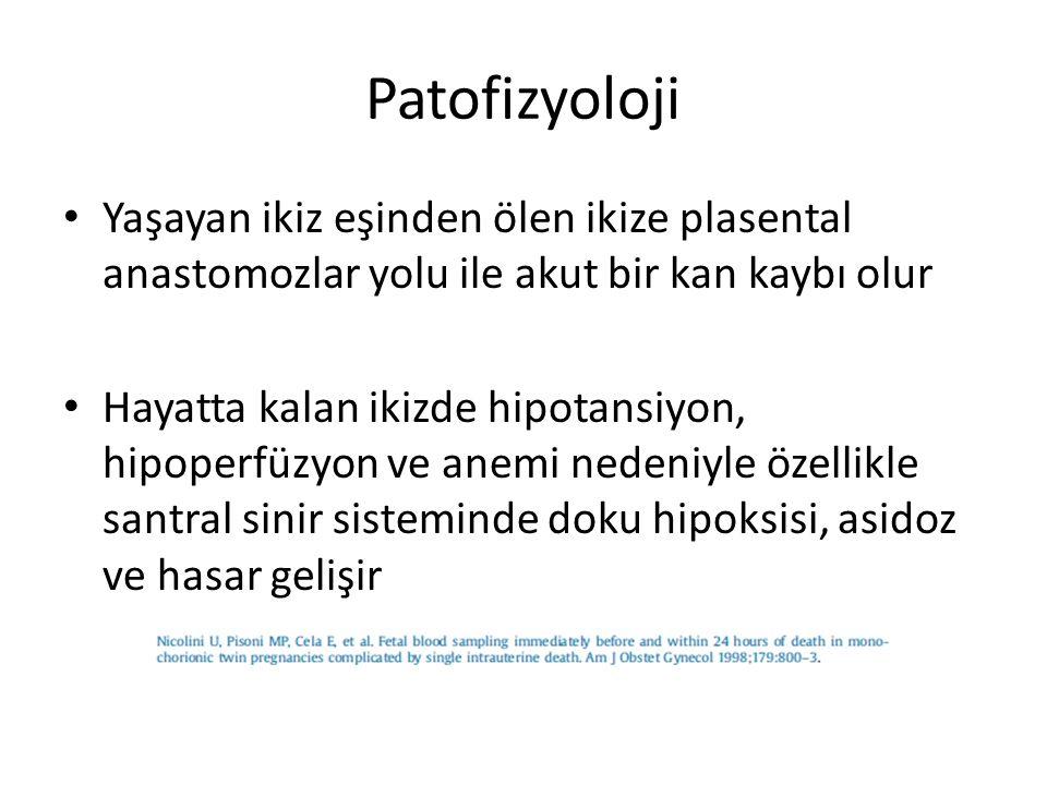 Patofizyoloji Yaşayan ikiz eşinden ölen ikize plasental anastomozlar yolu ile akut bir kan kaybı olur.