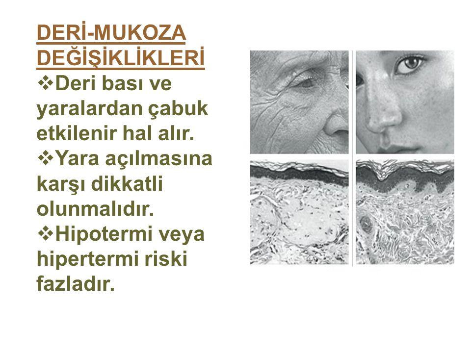 DERİ-MUKOZA DEĞİŞİKLİKLERİ