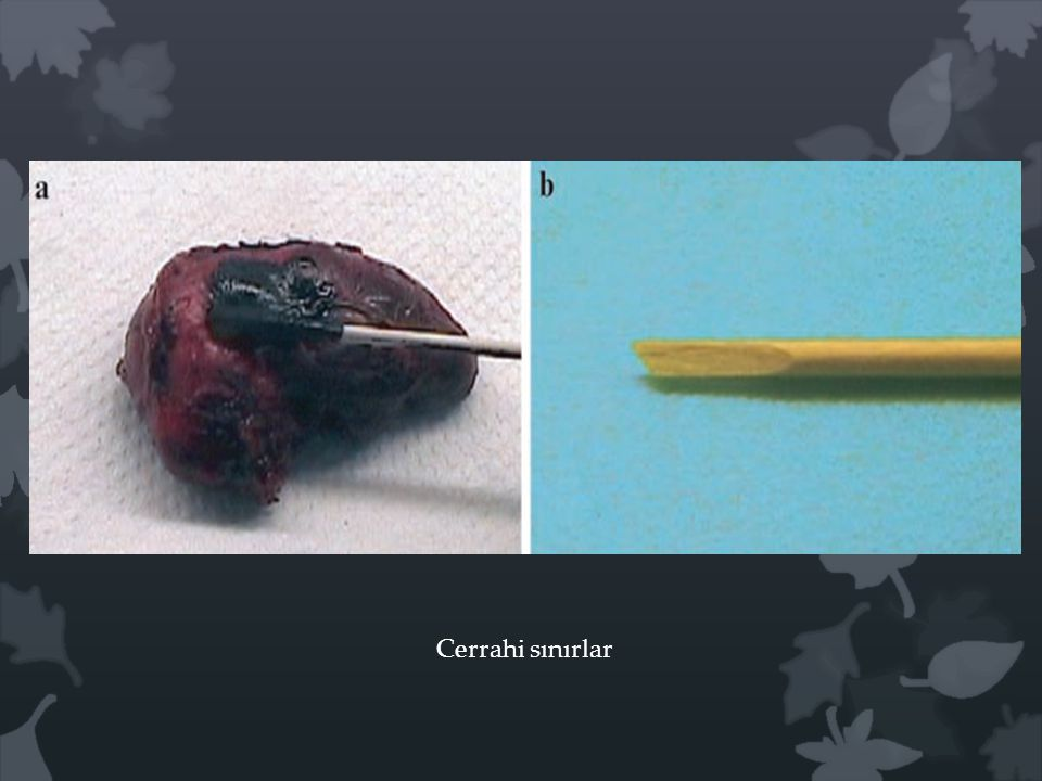 Cerrahi sınırlar