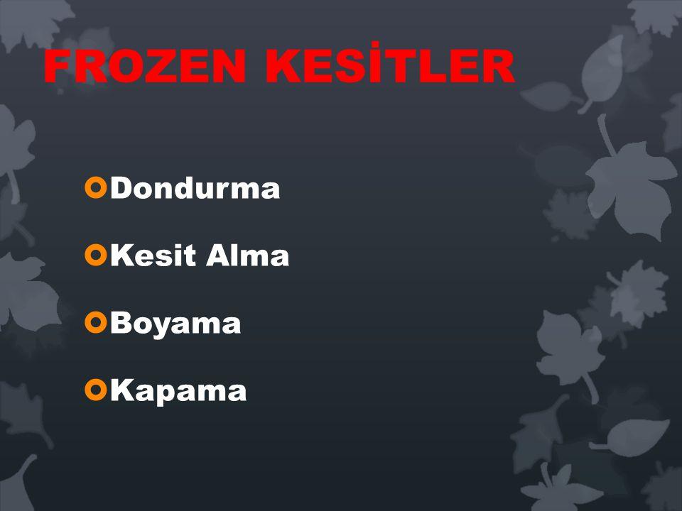 FROZEN KESİTLER Dondurma Kesit Alma Boyama Kapama