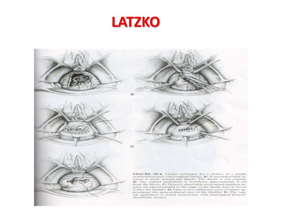 LATZKO