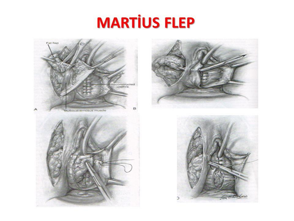 MARTİUS FLEP