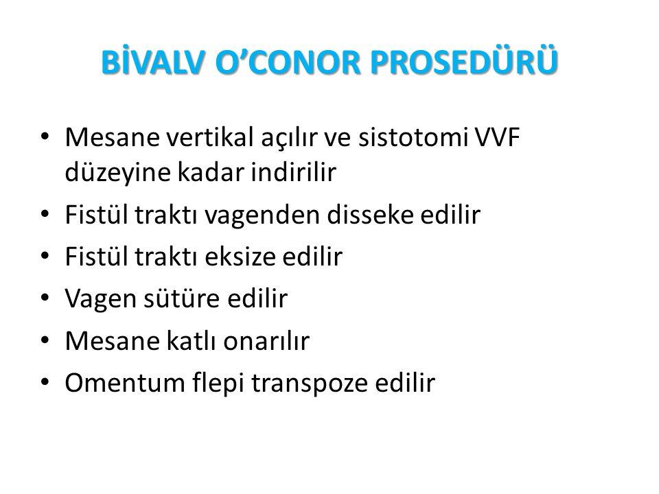 BİVALV O'CONOR PROSEDÜRÜ