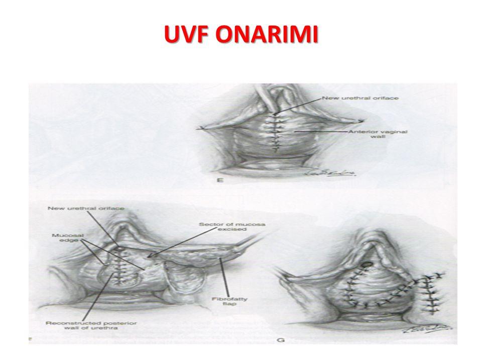 UVF ONARIMI