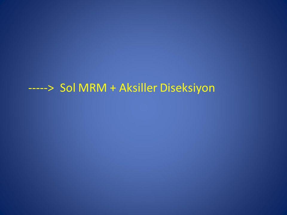 -----> Sol MRM + Aksiller Diseksiyon