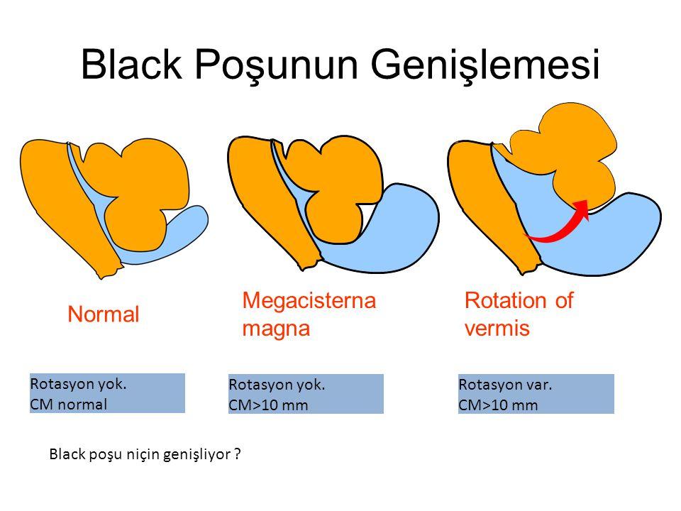 Black Poşunun Genişlemesi