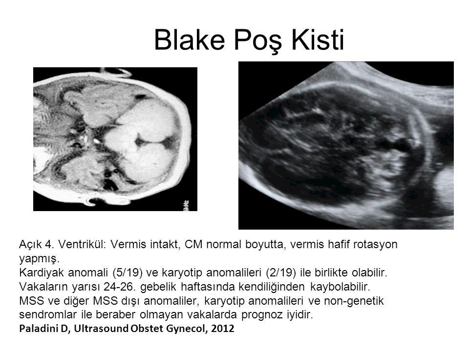 Blake Poş Kisti Açık 4. Ventrikül: Vermis intakt, CM normal boyutta, vermis hafif rotasyon yapmış.