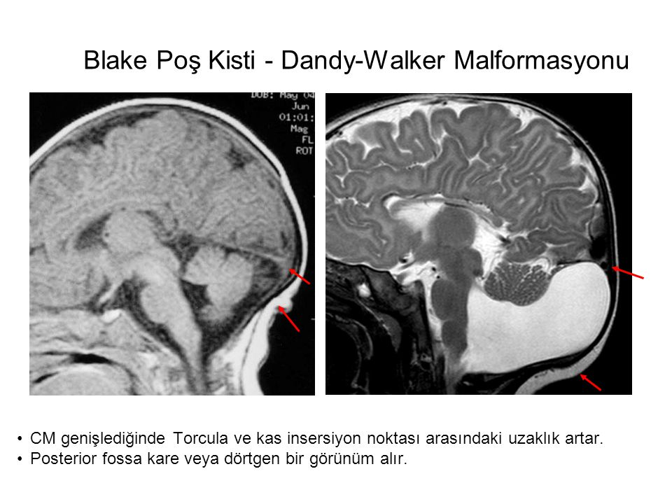 Blake Poş Kisti - Dandy-Walker Malformasyonu