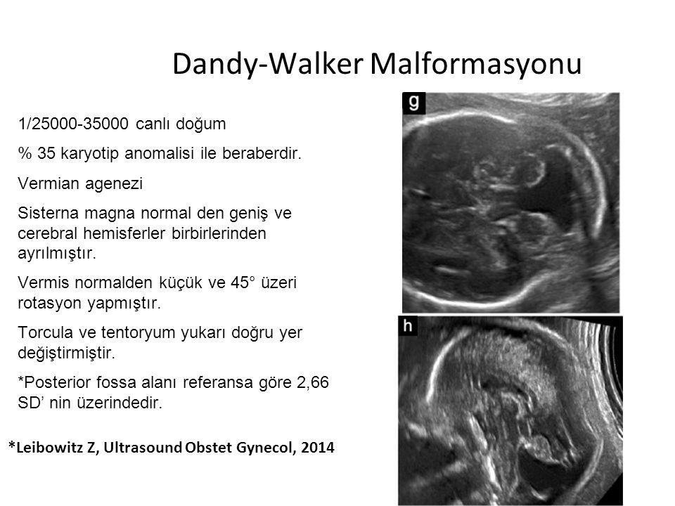 Dandy-Walker Malformasyonu