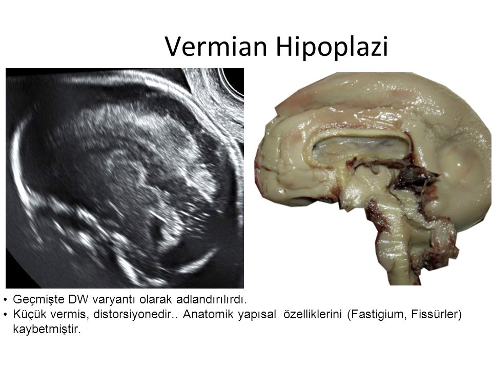 Vermian Hipoplazi Geçmişte DW varyantı olarak adlandırılırdı.