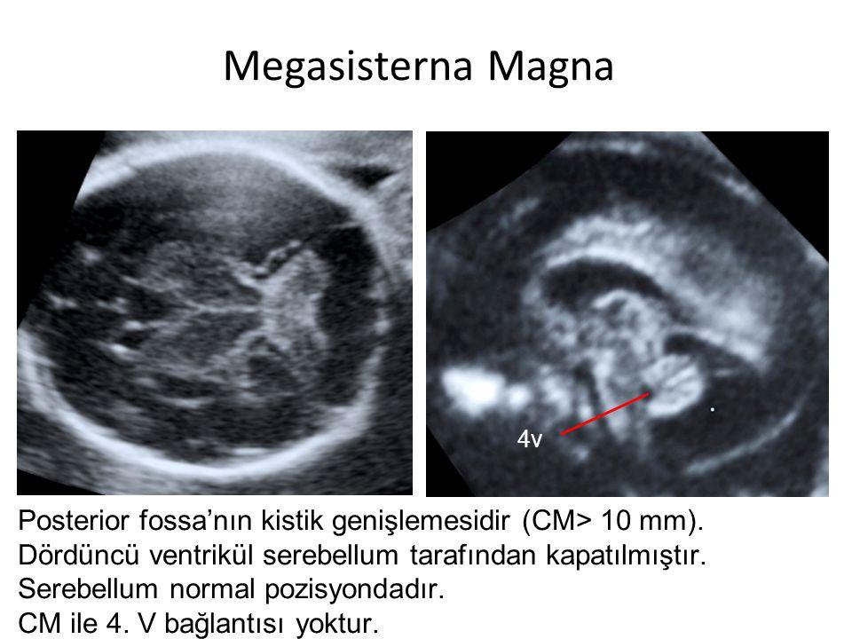 Megasisterna Magna 4v. Posterior fossa'nın kistik genişlemesidir (CM> 10 mm). Dördüncü ventrikül serebellum tarafından kapatılmıştır.