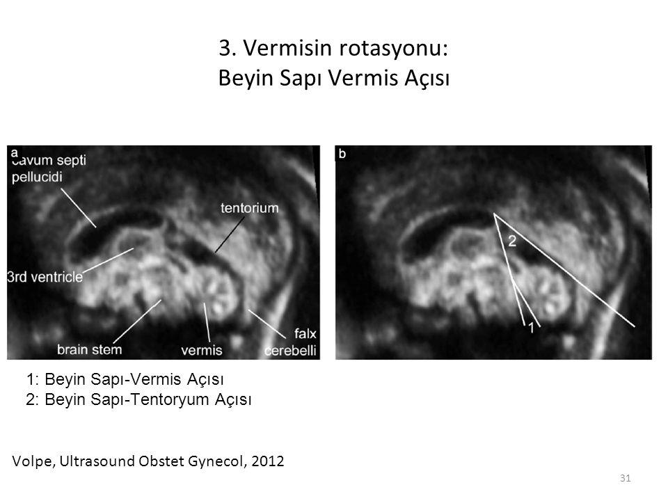 3. Vermisin rotasyonu: Beyin Sapı Vermis Açısı