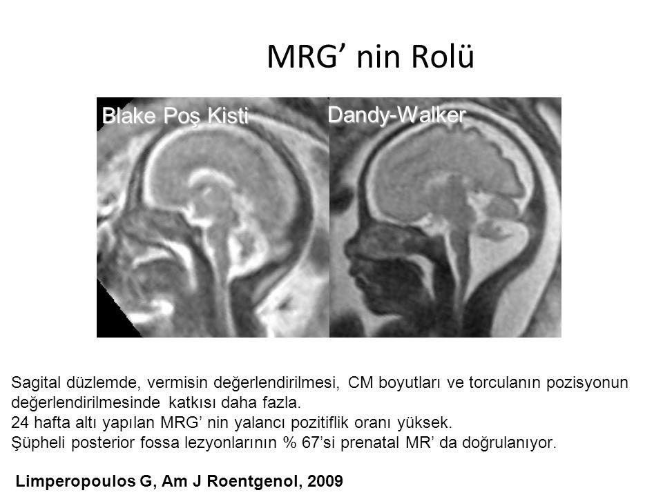 MRG' nin Rolü Blake Poş Kisti Dandy-Walker Muscoli del collo