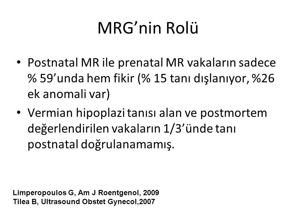 MRG'nin Rolü Postnatal MR ile prenatal MR vakaların sadece % 59'unda hem fikir (% 15 tanı dışlanıyor, %26 ek anomali var)