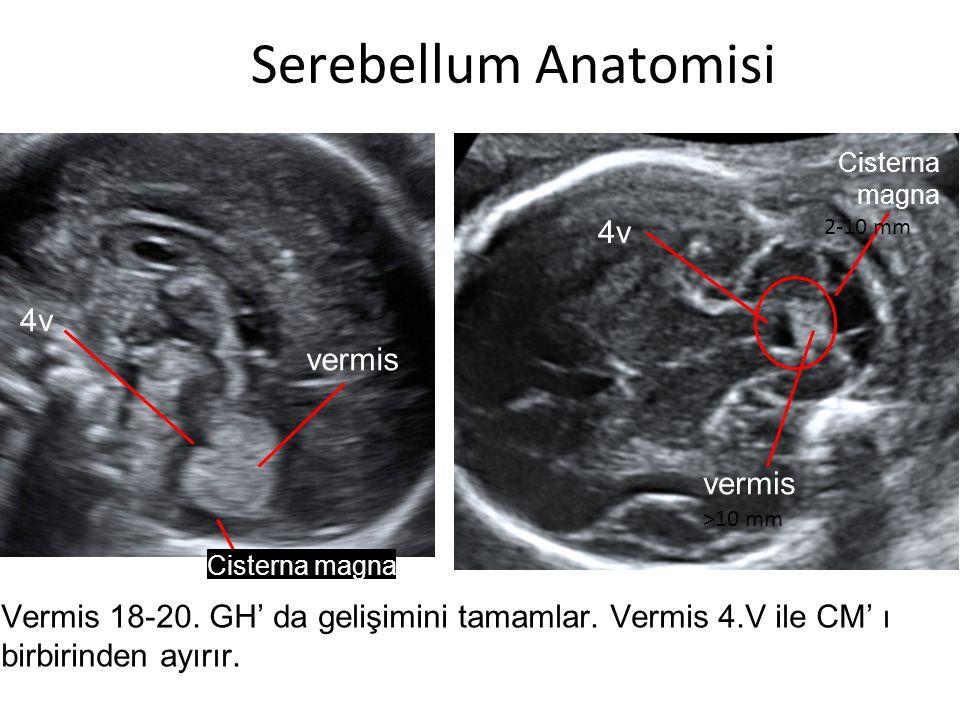 Serebellum Anatomisi 4v 4v vermis vermis