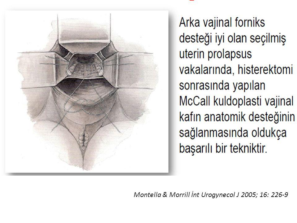 Montella & Morrill İnt Urogynecol J 2005; 16: 226-9