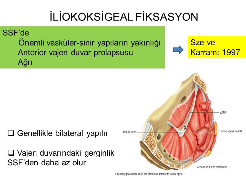 İLİOKOKSİGEAL FİKSASYON