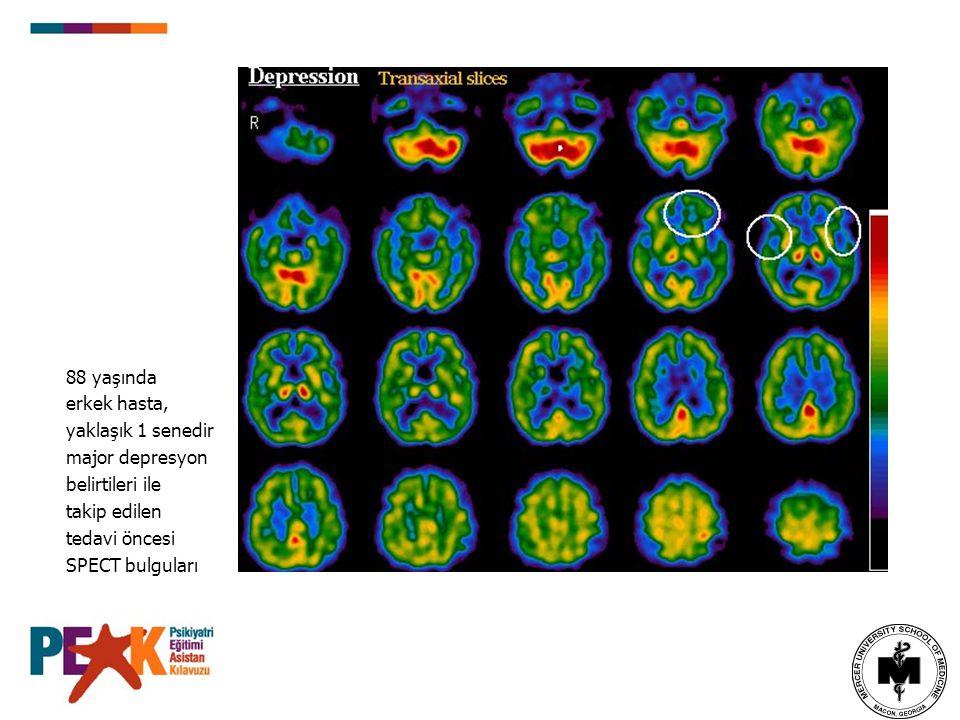 88 yaşında erkek hasta, yaklaşık 1 senedir. major depresyon. belirtileri ile. takip edilen. tedavi öncesi.