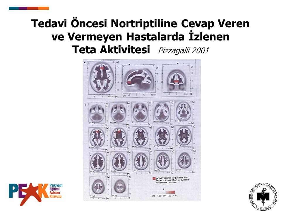 Tedavi Öncesi Nortriptiline Cevap Veren ve Vermeyen Hastalarda İzlenen Teta Aktivitesi Pizzagalli 2001