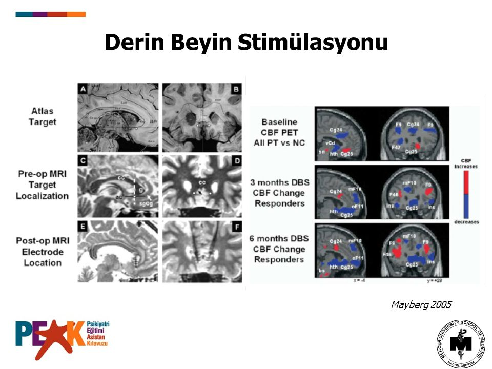 Derin Beyin Stimülasyonu