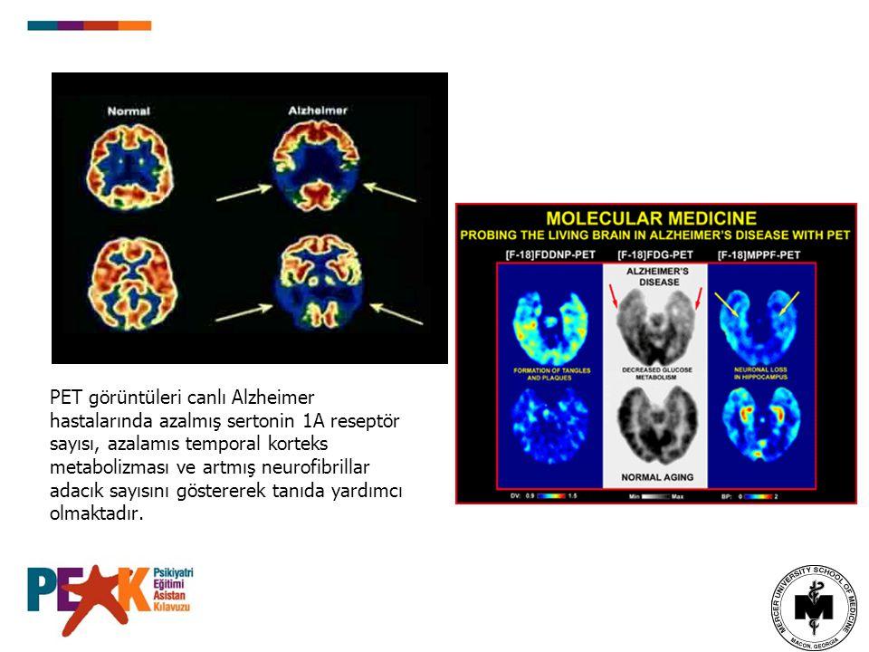 PET görüntüleri canlı Alzheimer hastalarında azalmış sertonin 1A reseptör sayısı, azalamıs temporal korteks metabolizması ve artmış neurofibrillar adacık sayısını göstererek tanıda yardımcı olmaktadır.