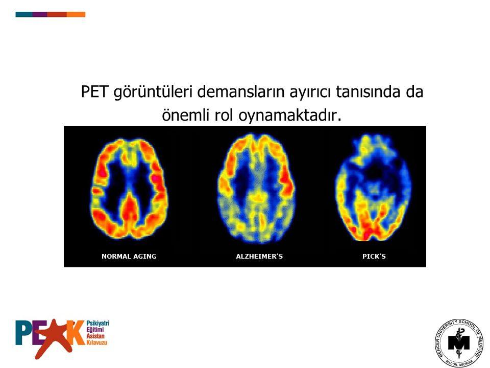 PET görüntüleri demansların ayırıcı tanısında da