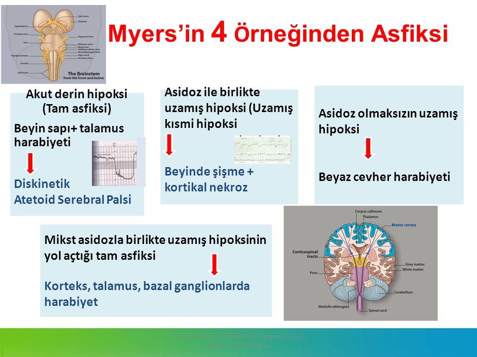 Myers'in 4 Örneğinden Asfiksi
