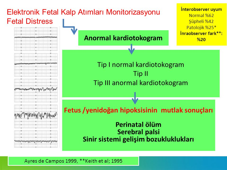 Elektronik Fetal Kalp Atımları Monitorizasyonu Fetal Distress