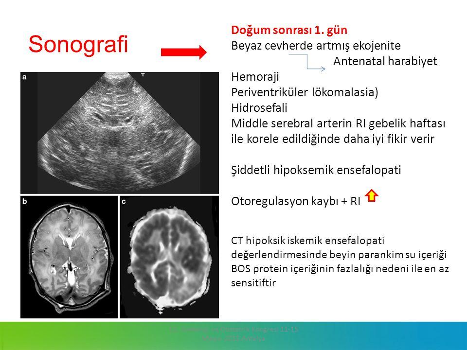 13. Jinekoloji ve Obstetrik Kongresi 11-15 Mayıs 2015 Antalya