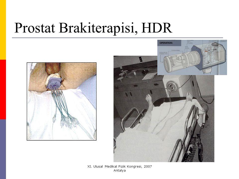 Prostat Brakiterapisi, HDR