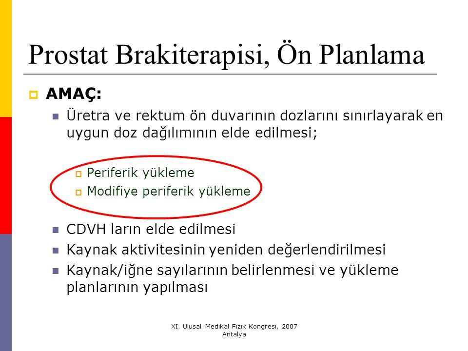 Prostat Brakiterapisi, Ön Planlama