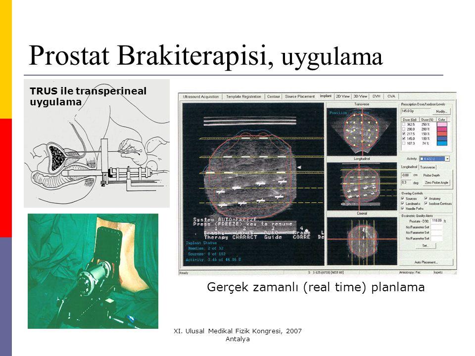 Prostat Brakiterapisi, uygulama